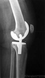 how to control swelling after knee replacment surgery