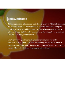 bell syndrome
