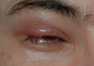 How To Get Rid Of A Stye Fast | eBooks | Health