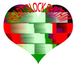 heart block rhythm