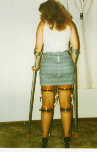 polio leg braces.  10 pictures. the cinderella sampler.