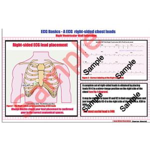 right ventricle wall mi (pdf) study card.