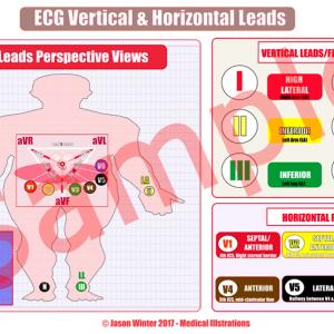 ecg lead surfaces