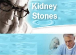 51 tips for dealing with kidney stones can help!