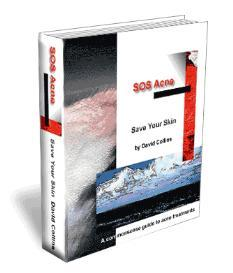 SOS Acne eBook - a sufferer tells you vital information | eBooks | Health
