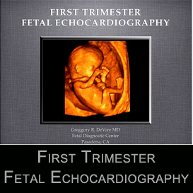 First Trimester Fetal Echocardiography | Movies and Videos | Educational