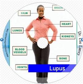 Lupus | Music | Miscellaneous