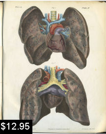 Lung Anatomy Print | Photos and Images | Vintage