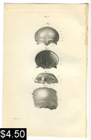 Anatomy Print Human Skull | Photos and Images | Vintage