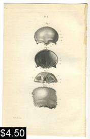 anatomy print human skull