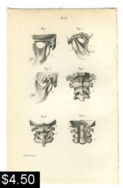Cervical Spine TMJ Anatomy Print | Photos and Images | Vintage
