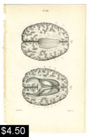 Human Brain Anatomy Print | Photos and Images | Vintage